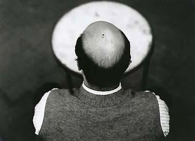 Hombre calvo con mosca en la cabeza
