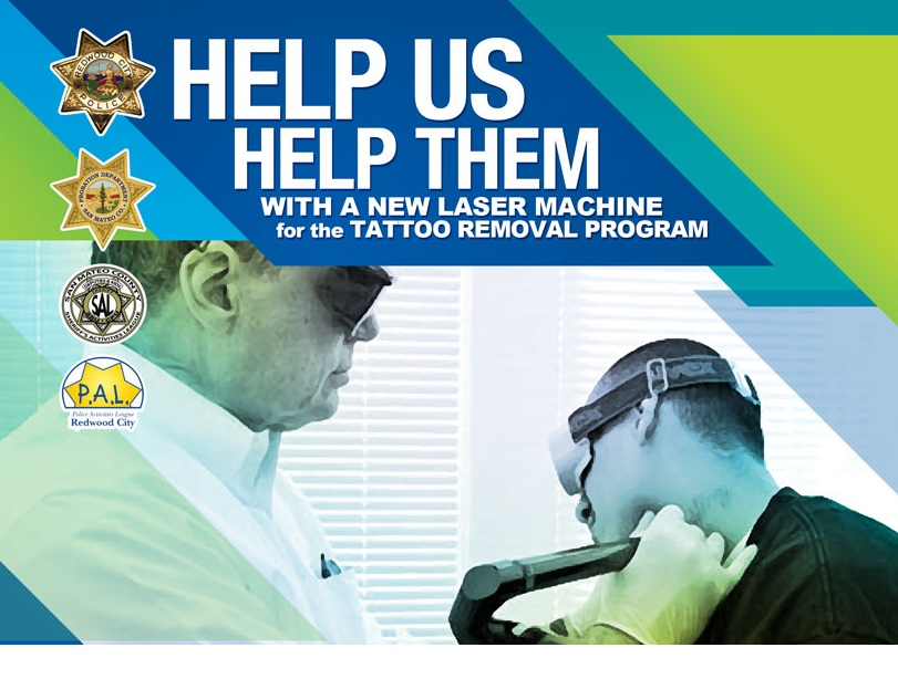 100 tattoo removal program lasd sheriff u0027s news for Tattoo removal scottsdale az