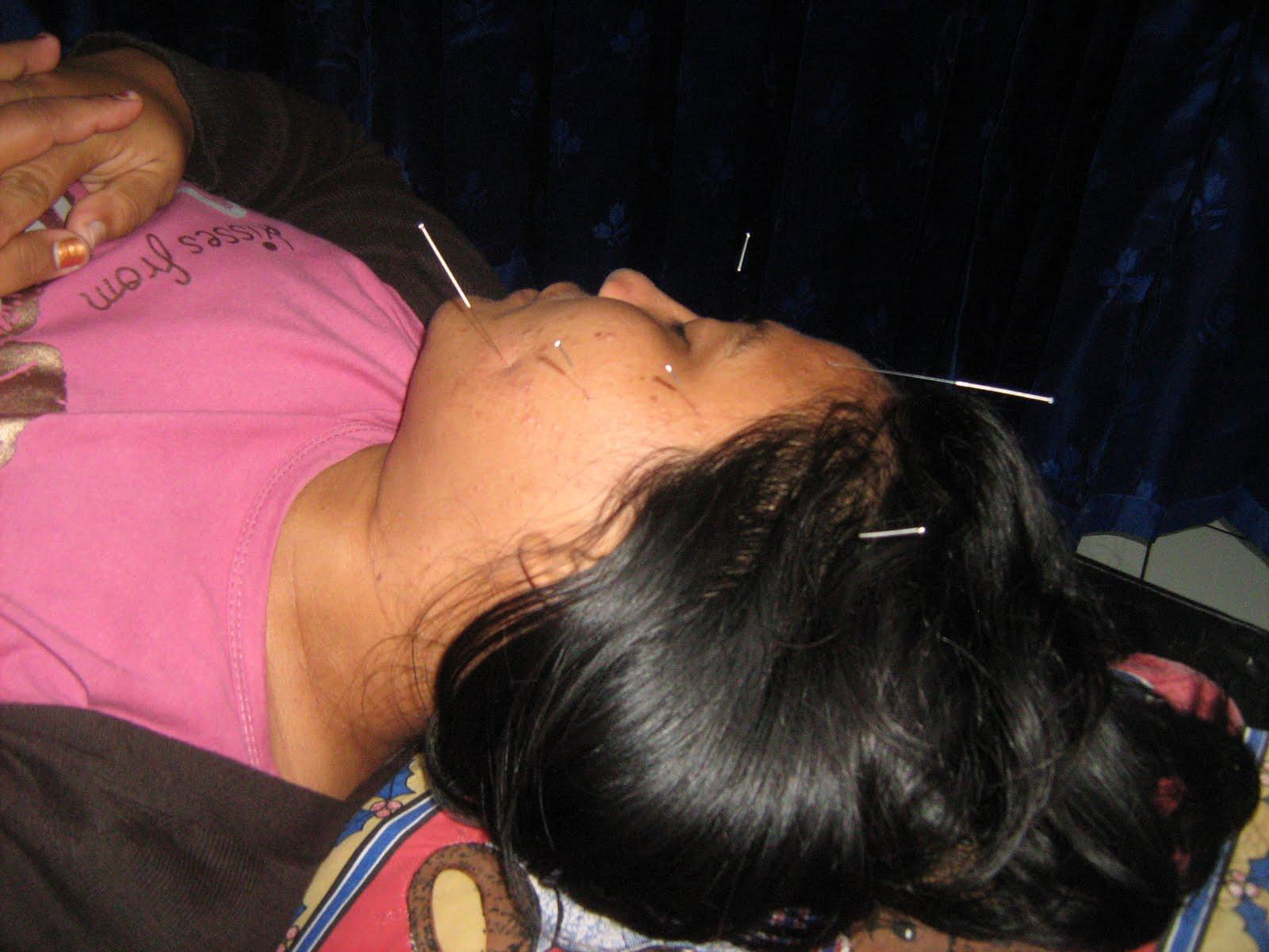 Akupunktur Wajah Kebas, Sakit Wajah, Trigeminal Neuralgia