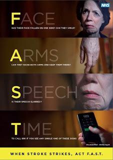 tanda-tanda stroke