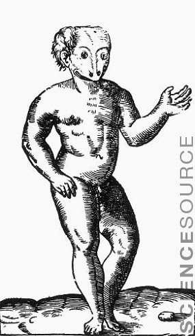 Anencephalic Child, 16th Century - Stock Illustration 9N3026