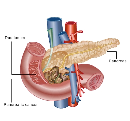Can diabetes cause pancreatic cancer symptoms