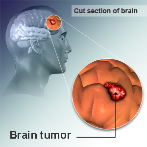 how to tell if u have a tumor