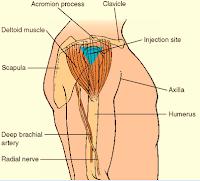 Track Medication Administration (Deep Intramuscular)