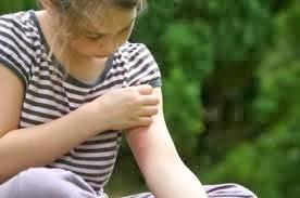 Penyebab , Gejala , Dan Pengobatan Penyakit Kudis atau Kudisan (Scabies)