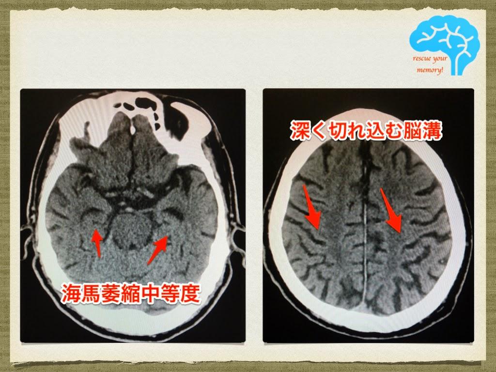 アルツハイマー型認知症 82歳男性 CT