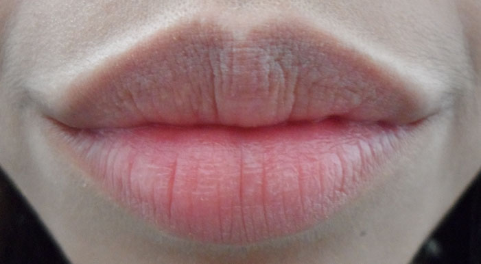 Chapped Lips Before And After