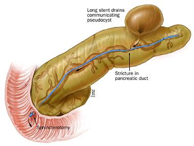 Informatii medicale despre pancreatita cronica