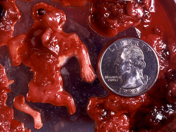 abortion 8 weeks. fetus at 6 weeks.