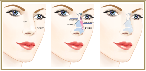 Rhinoplasty Diagram