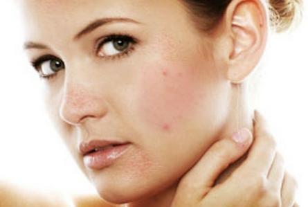 Chăm sóc da bị mụn từ mặt nạ bí đao và cách thực hiện