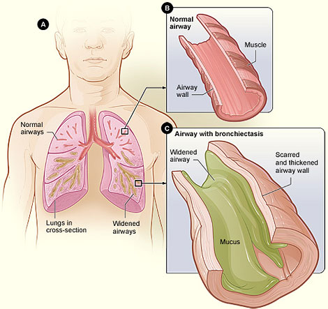 Changes in bronchiectasis