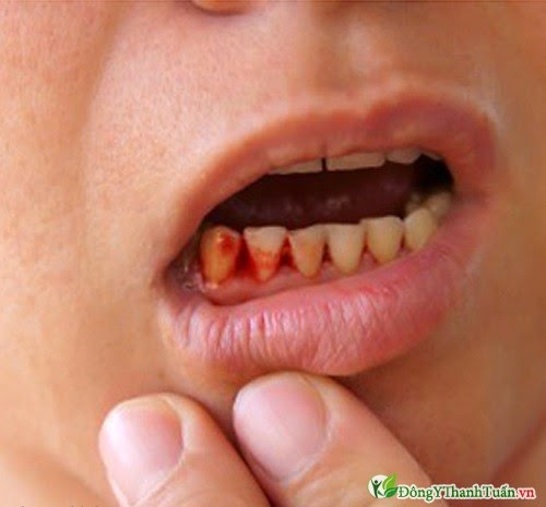 bệnh chảy máu chân răng