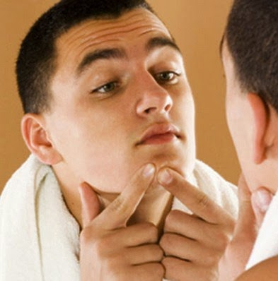 Faktor penyebab jerawat pada pria