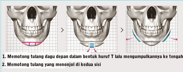 Operasi ujung dagu untuk kasus dagu lebar di Klinik Operasi Plastik Wonjin