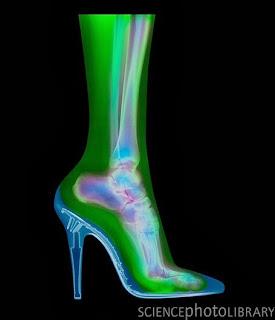 Dampak Memakai High Heels
