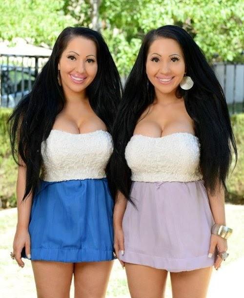 Dos gemelas sin diferencias