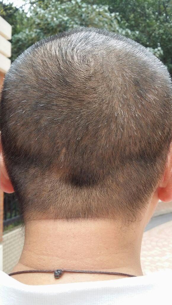 Aus welchem Grund das Haar bei den Männern prolabiert