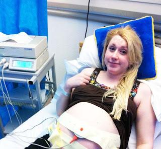 monitoring heartbeats twin labour