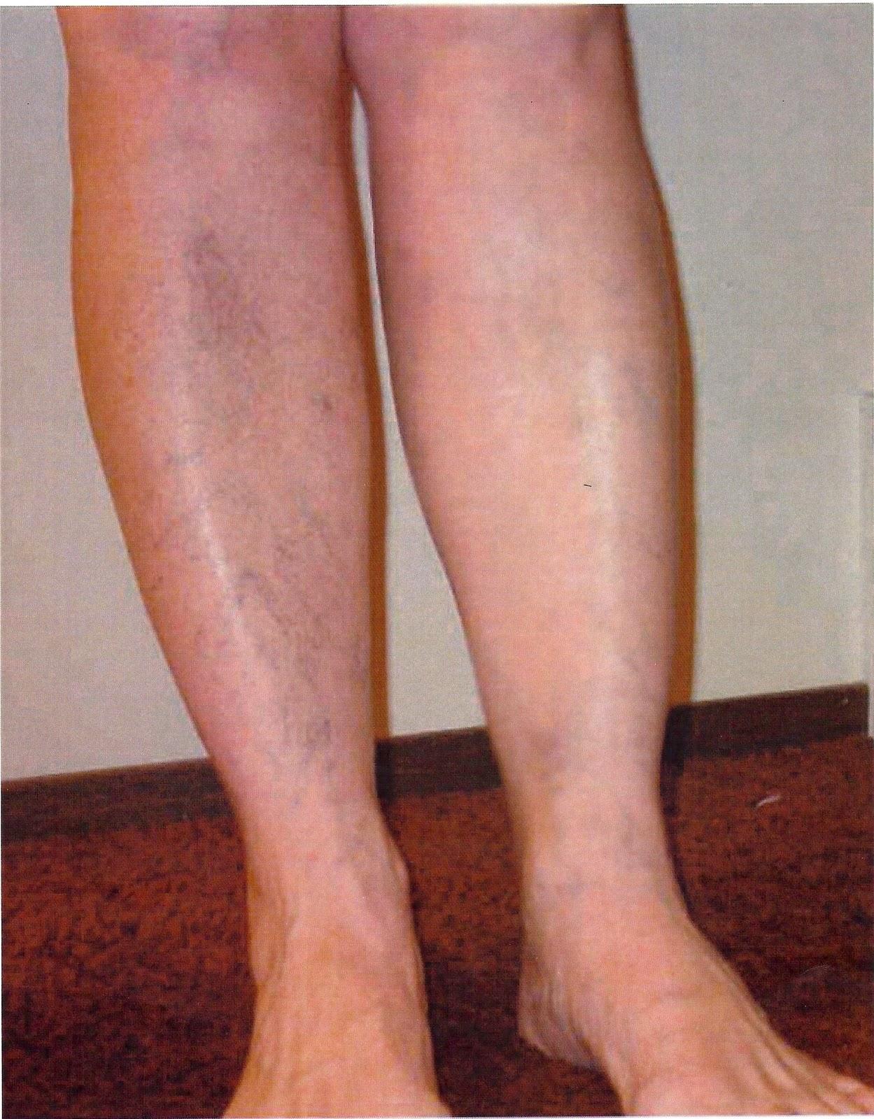 Варикозная сетка на ногах как избавиться в домашних условиях 562