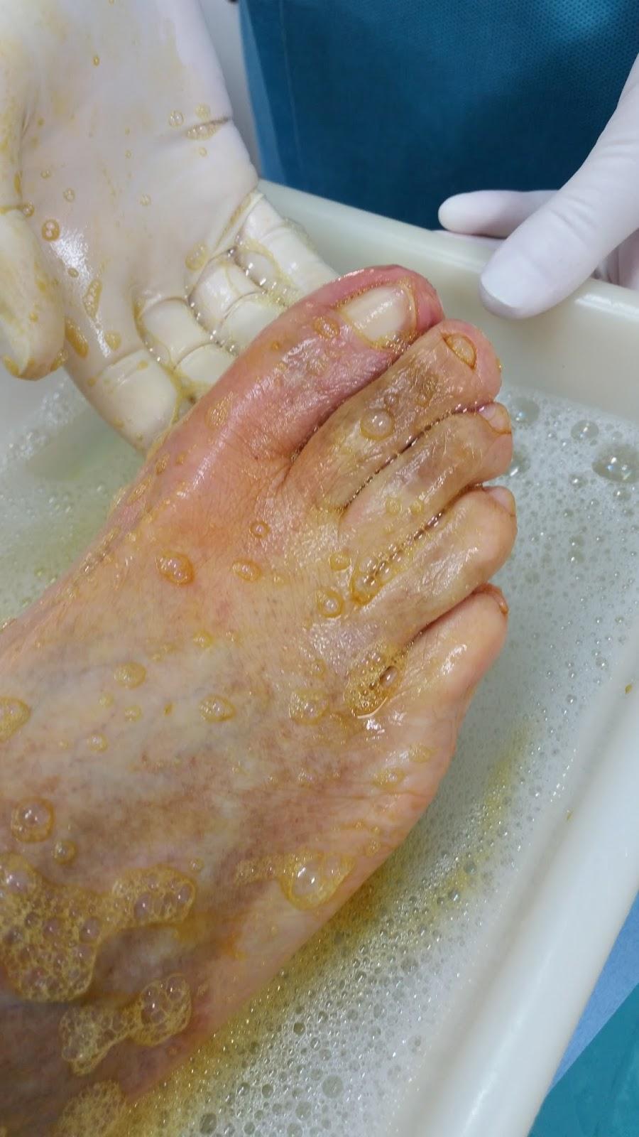 Podo basas al d a u a incarnada onicocriptosis t cnica for Operacion de pies