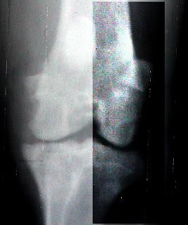 radiologia artrosis perro