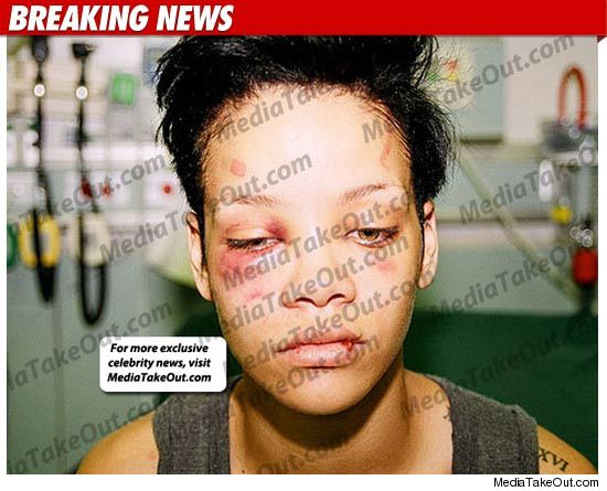 rihanna pics leaked by chris brown. New Beaten Rihanna Picture