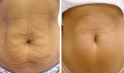 Como perder grasa corporal mujeres dos
