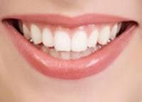 Tips Cara Memutihkan Gigi Kuning Alami