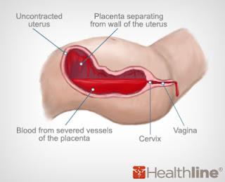 Pregnancy and vaginal flatulence