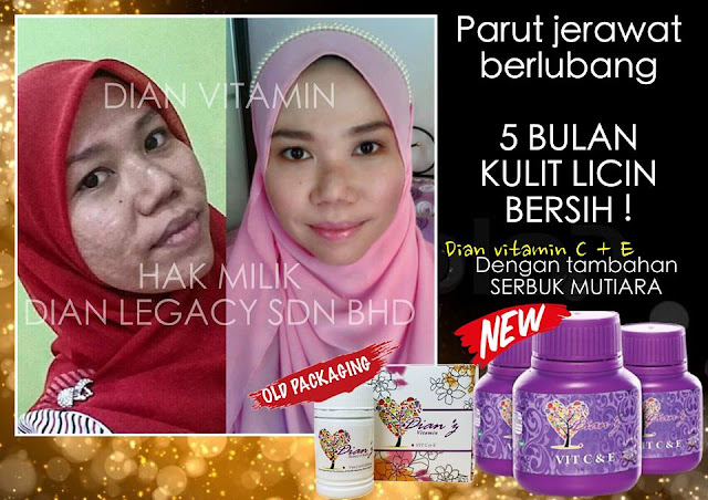 Testimoni Dianz Vitamin Extra Pearl