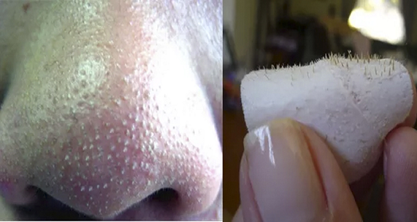 How To Get Rid Of Blackheads On Nose Fast At Home