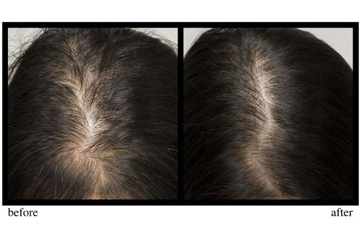 Nuhair Hair Regrowth For Women 60 Tablets