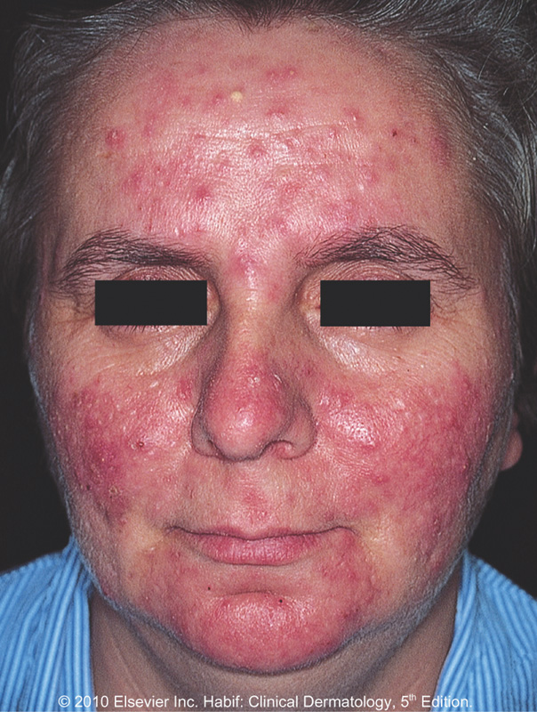 Demodex Solutions heals itching, acne, rosacea, swollen ...