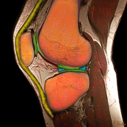 Sagittal Color Knee MRI Image showing the Meniscus