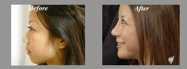 Non-Surgical Nose Job Worth it? Reviews, Cost, Pictures