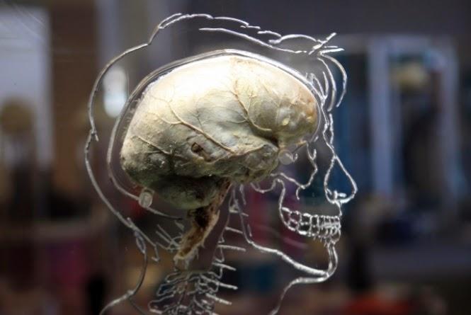 O sistema consegue fazer isso usando uma grande rede de neurônios e sinapses