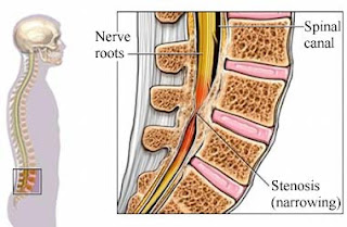 Affordable spine Surgery in India for spinal stenosis