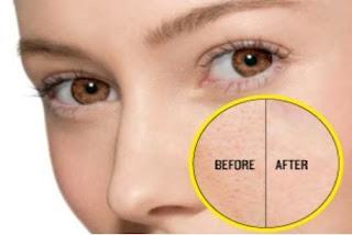 Comment réduire les pores dilatés