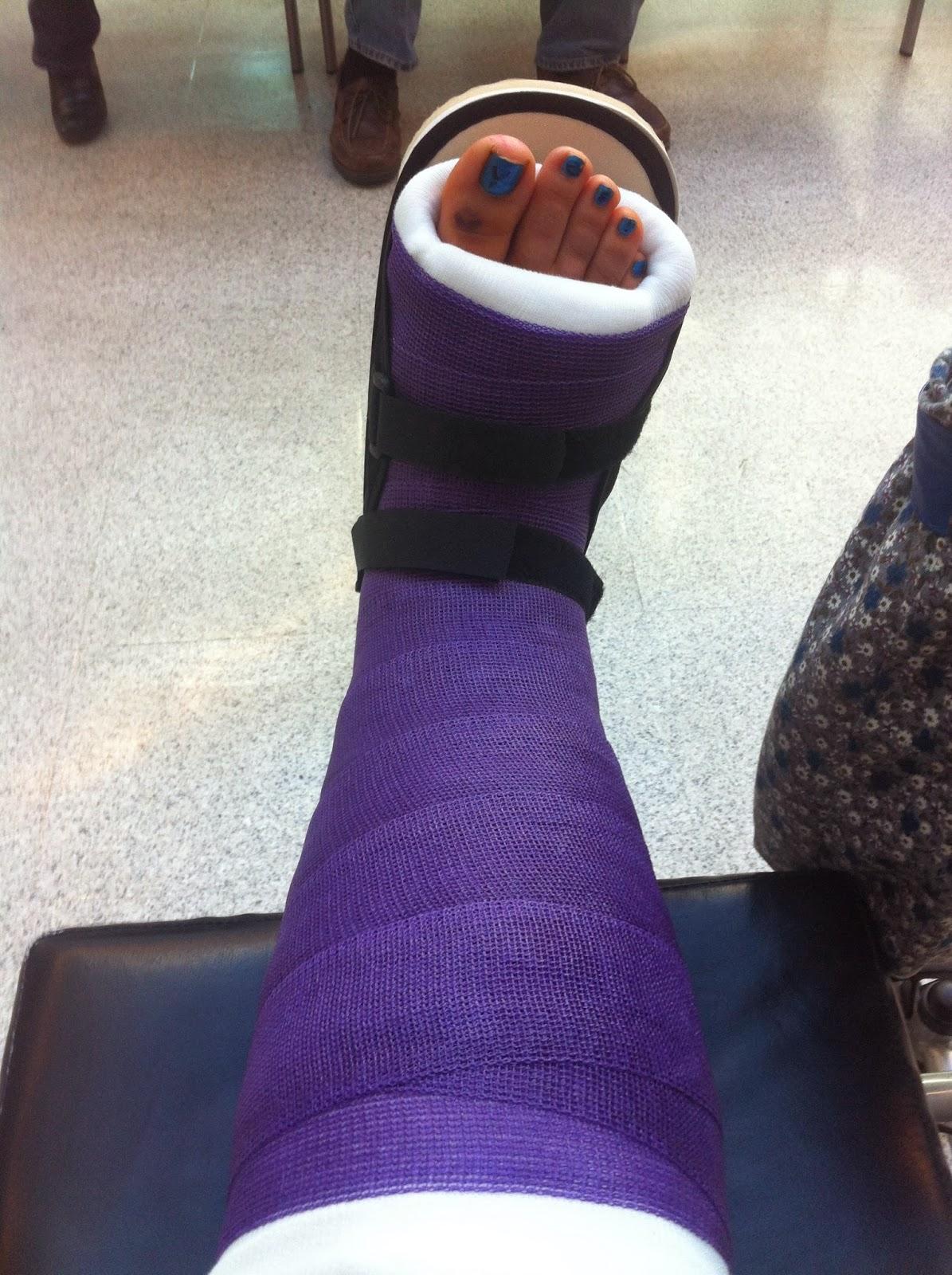Broken ankle cast colors images for Arm cast decoration ideas