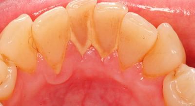 Cara Cepat Dan Mudah Menghilangkan Karang Gigi Secara Alami 101dunia