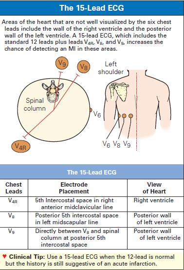 Posterior Ekg Placement Related Keywords Posterior Ekg