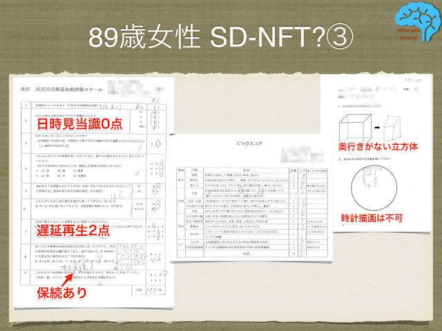 神経原線維変化型老年期認知症(SD-NFT)疑いの長谷川式