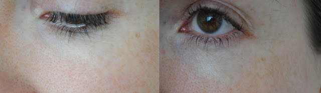 Image Skincare Regime - Right Left of Face Before (left) and After (right)