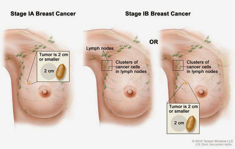 Fundamentals of Breast Cancer Causes and Breast Cancer Radiation