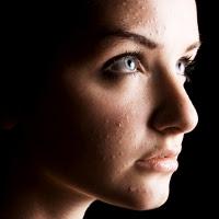 Cara Menghilangkan Bekas Jerawat