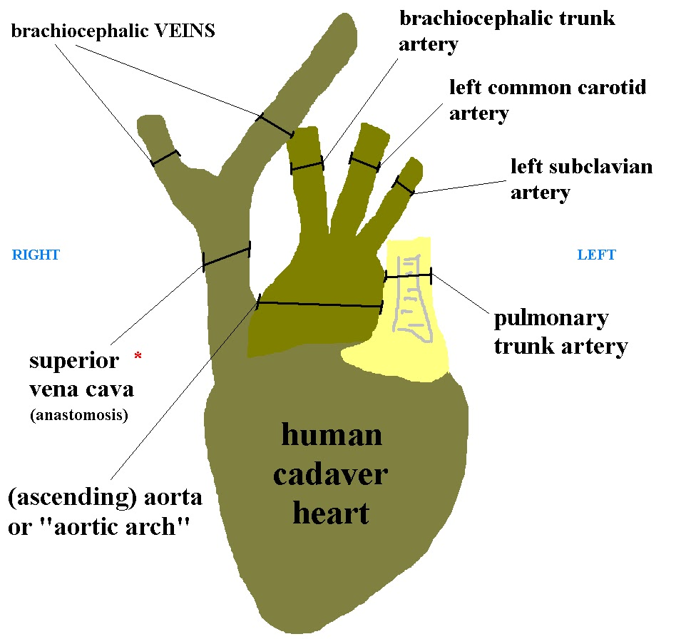 Vascular cat human cadaver heart cartoon diagram pooptronica