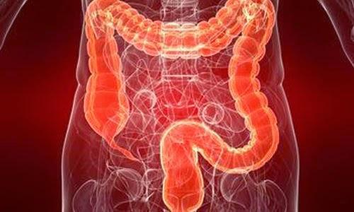 تنظيف القولون بالاعشاب ومخاطر التنظيف بالعملية الجراحية  cleaning colon