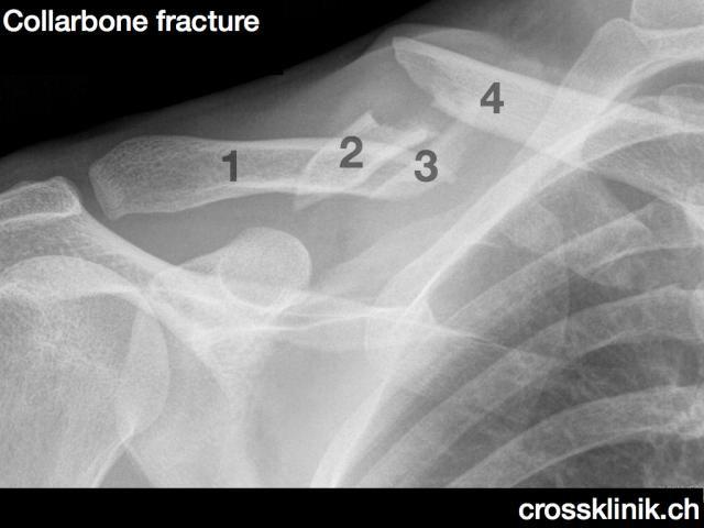 Frattura della clavicola