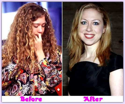 Chelsea clinton plastic surgery nose job chin augmentation before and